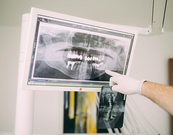 Dr. med. dent. Hanns Joachim Pfitzer zeigt anhand einer Röntgenaufnahme den Unterschied zwischen der Behandlung im Bereich Endodontie (Zahnerhalt) und Implantologie (Zahnersatz) in seiner Zahnarztpraxis in Stuttgart