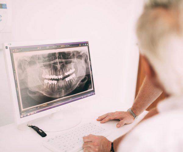 Die Zahnärzte der Zahnarztpraxis Dr. Pfitzer in Stuttgart begutachten auf einem Monitor eine Röntgenaufnahme des gesunden Gebisses nach einer Wurzelbehandlung