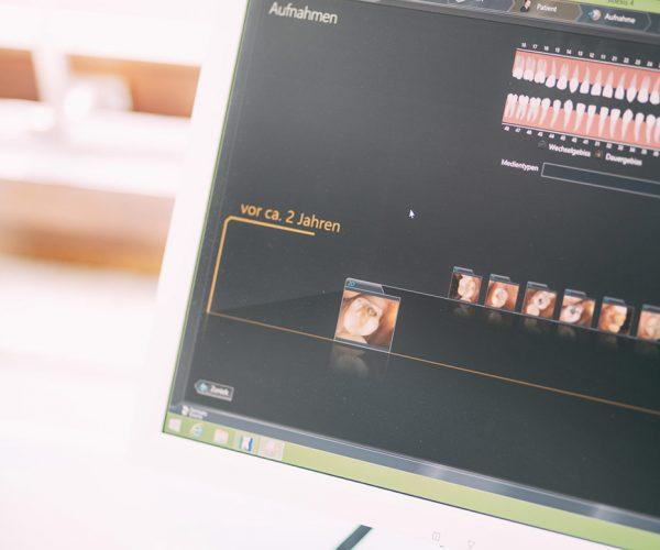 Detailaufnahme eines Monitors, der grafisch den erfolgreichen Verlauf einer Ästhetischen Füllungstherapie eines Patienten über die letzten zwei Jahre in der Zahnarztpraxis Dr. Pfitzer in Stuttgart zeigt