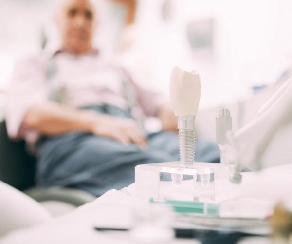 Ein Implantat-Modell zeigt schematisch den Aufbau eines Zahnimplantats mit Zahnersatz. Anhand solcher Modelle informieren wir in der Zahnarztpraxis in Stuttgart unsere Patienten, wie ein Implantat funktioniert