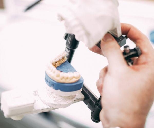 Ein Artikulator mit dem Gipsmodell eines Gebisses zeigt abstrakt die Funktionsweise von Kiefergelenken und der Behandlung von Störungen im Kiefergelenk in der Zahnarztpraxis Dr. Pfitzer in Stuttgart