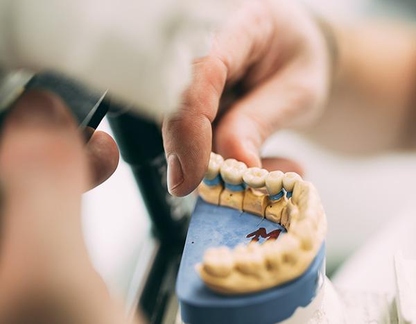 Eine Hand zeigt mithilfe eines Gipsmodells die Deutsche Qualitätsarbeit von ästhetisch hochwertigem Zahnersatz in der Zahnarztpraxis Dr. Pfitzer in Stuttgart