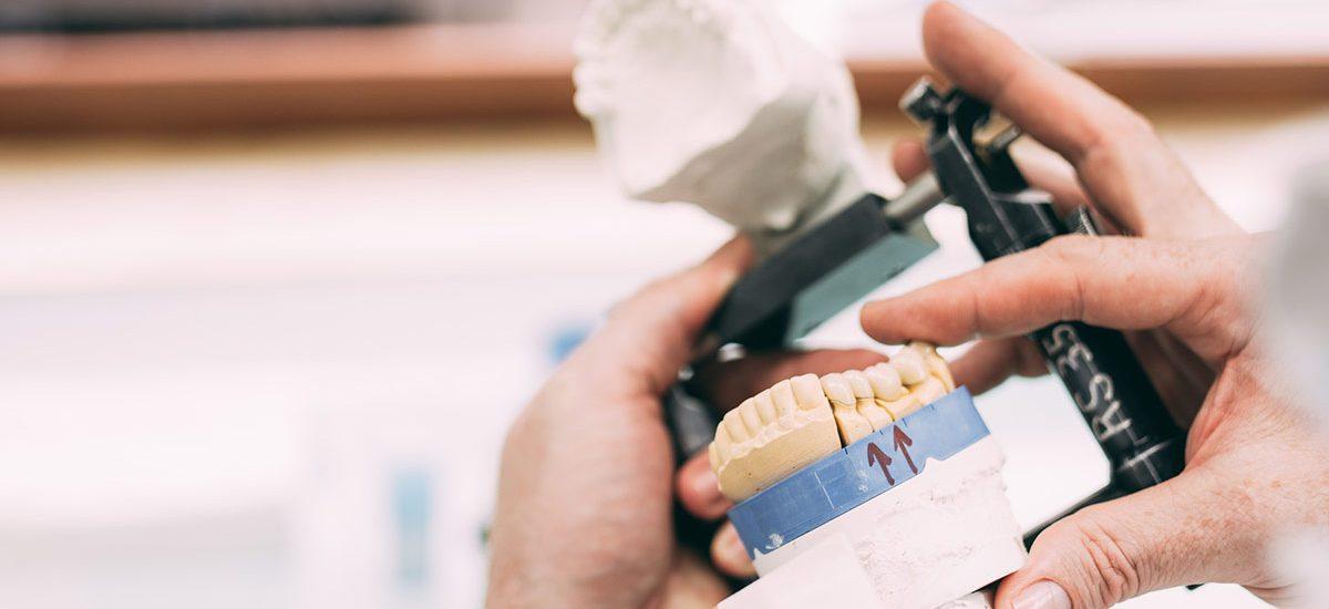 Zwei Hände zeigen anhand eines Gipsmodells die Qualität von ästhetisch hochwertigem Zahnersatz aus unseren Dentallaboren in Deutschland – die wichtigen Partner der Zahnarztpraxis Dr. Pfitzer in Stuttgart