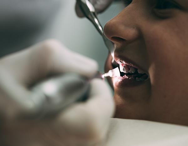 Detailaufnahme eines Mundes beim Polieren der Zahnoberflächen während der professionellen Zahnreinigung in der Zahnarztpraxis Dr. Pfitzer in Stuttgart