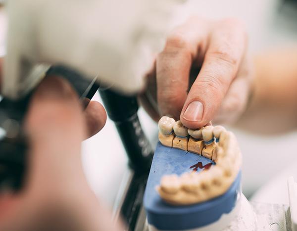 Eine Hand zeigt anhand eines Gipsmodells den Zahnersatz einer Krone für die ästhetische Versorgung in der Zahnarztpraxis Dr. Pfitzer in Stuttgart