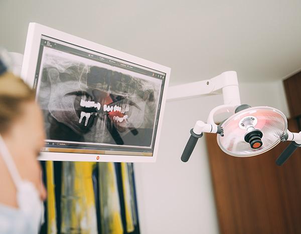Ein Monitor am Behandlungsstuhl zeigt durch eine Röntgenaufnahme die Versorgung mit einer Krone – das Ergebnis der Herstellung von Zahnersatz in der Zahnarztpraxis Dr. Pfitzer in Stuttgart