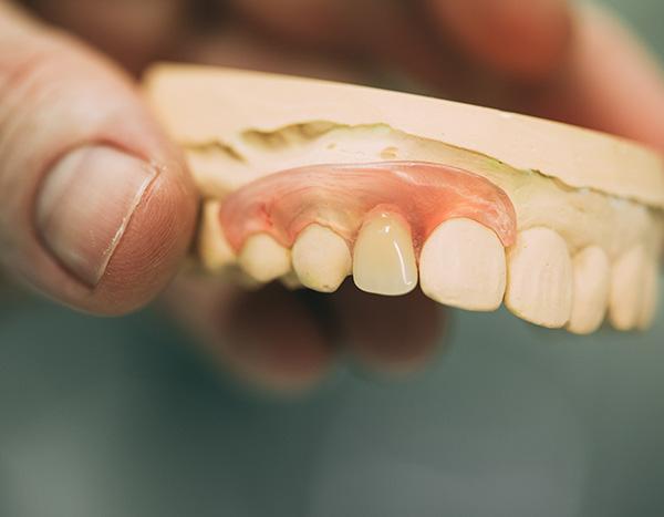 Eine Detailaufnahme zeigt eine Zahnprothese – eine Möglichkeit von herausnehmbaren Zahnersatz in der Zahnarztpraxis Dr. Pfitzer in Stuttgart