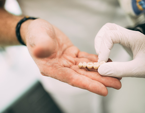 Zahnarzt und Implantologe Dr. Hanns Joachim Pfitzer übergibt einem Patienten ein Beispiel für hochwertigen Zahnersatz, der mithilfe von Cerec aus der Zahnarztpraxis Dr. Pfitzer Stuttgart erstellt wurde