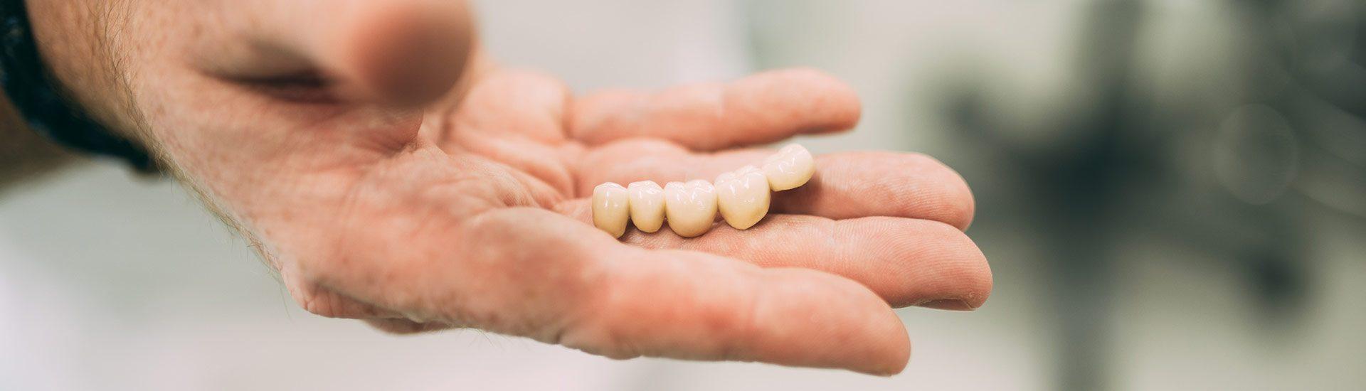 Detailaufnahme einer Hand mit hochwertigem Zahnersatz präsentiert eine optisch ansprechende Zahnbrücke aus der Zahnarztpraxis Dr. Pfitzer Stuttgart-Heumaden