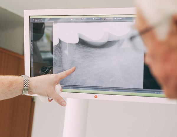 Zahnarzt Dr. med. dent. Hanns Joachim Pfitzer zeigt auf einem Monitor die Belastung der Kiefergelenke und erklärt das individuelle Therapiekonzept für einen gesunden Biss in seiner Zahnarztpraxis in Stuttgart